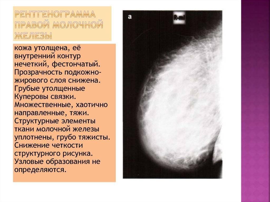 Узловое образование молочных желез лечение