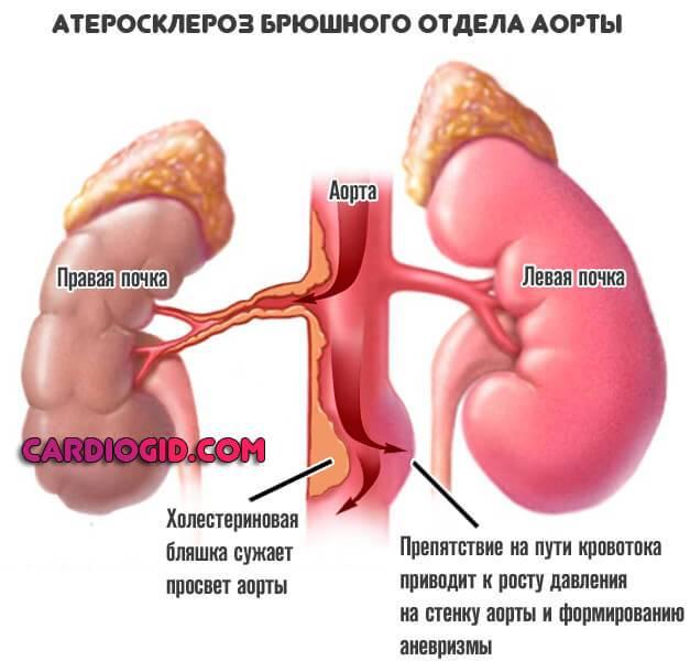 Симптомы и лечение атеросклероза брюшной аорты