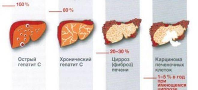 При гепатите температура есть