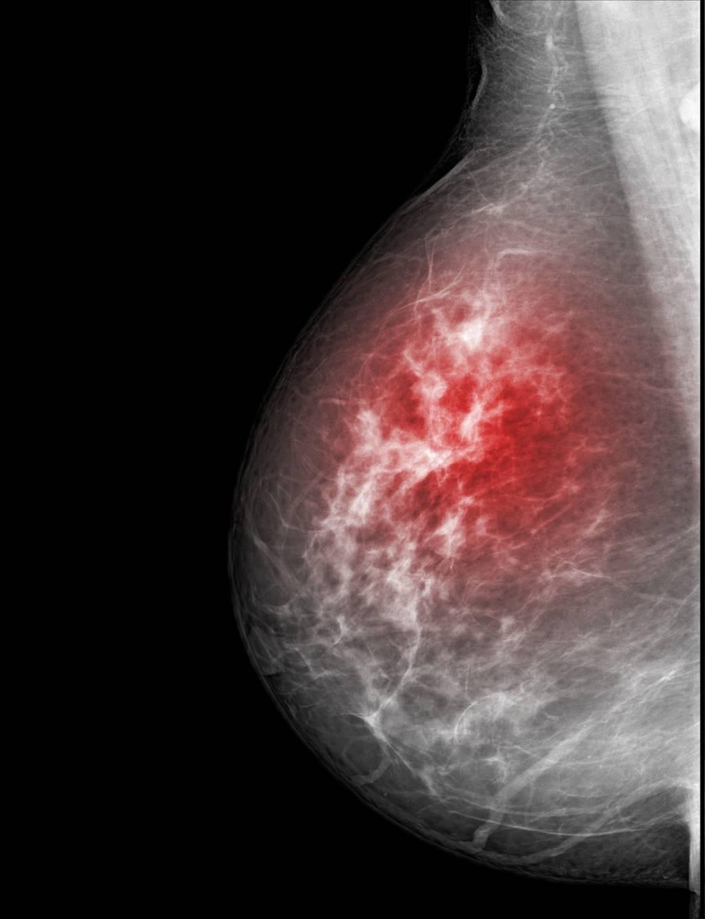чем отличается мастопатия от рака молочной железы