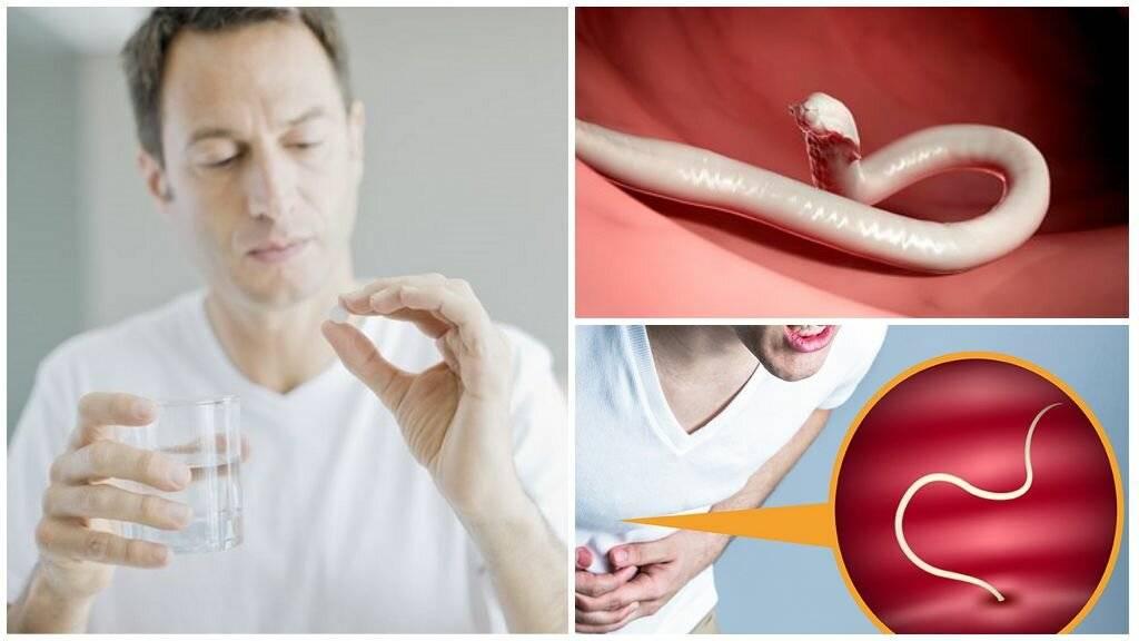 Аскариды: симптомы, лечение народными средствами. как лечить аскоридоз у детей и взрослых в домашних условиях - lechilka.com