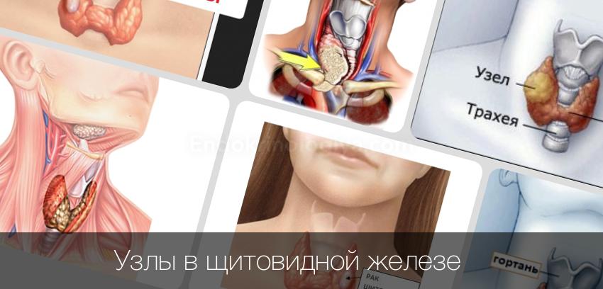 Какие бывают узлы щитовидной железы?