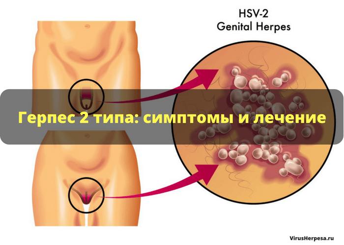 Симптомы и лечение герпеса в интимных местах
