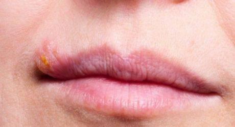 Проявления и лечение герпеса в носу