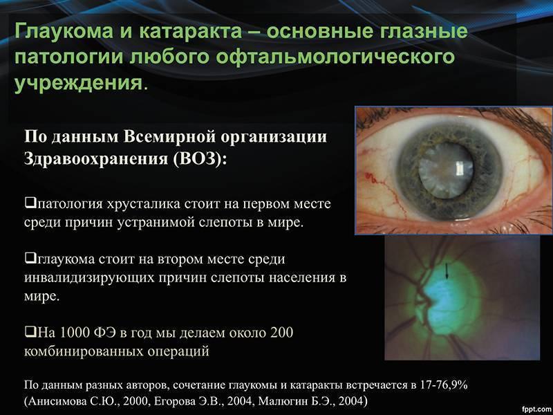 Острый приступ глаукомы