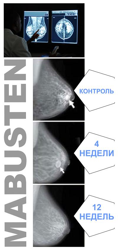 Как справится с болями и температурой при мастопатии?