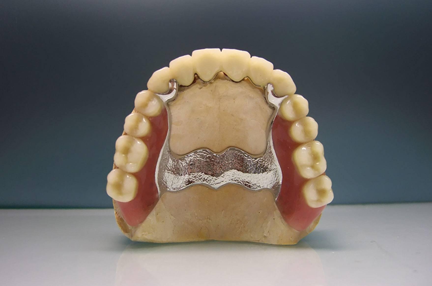 виды бюгельных протезов на верхнюю челюсть