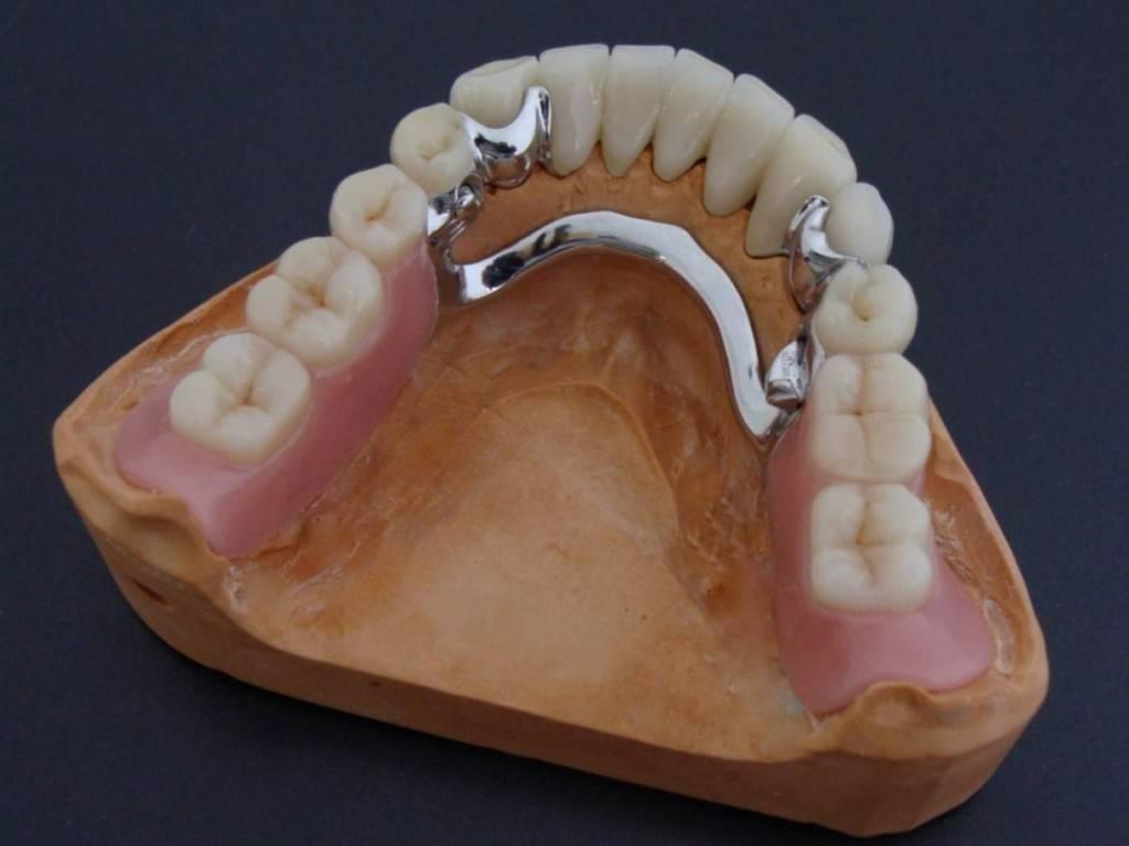 какой зубной протез лучше