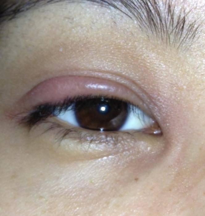 Воспалительные заболевания глаз у детей и взрослых - симптомы и проявления, диагностика и лечение