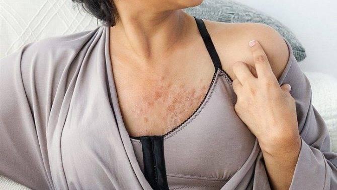 увеличиваются ли лимфоузлы при мастопатии