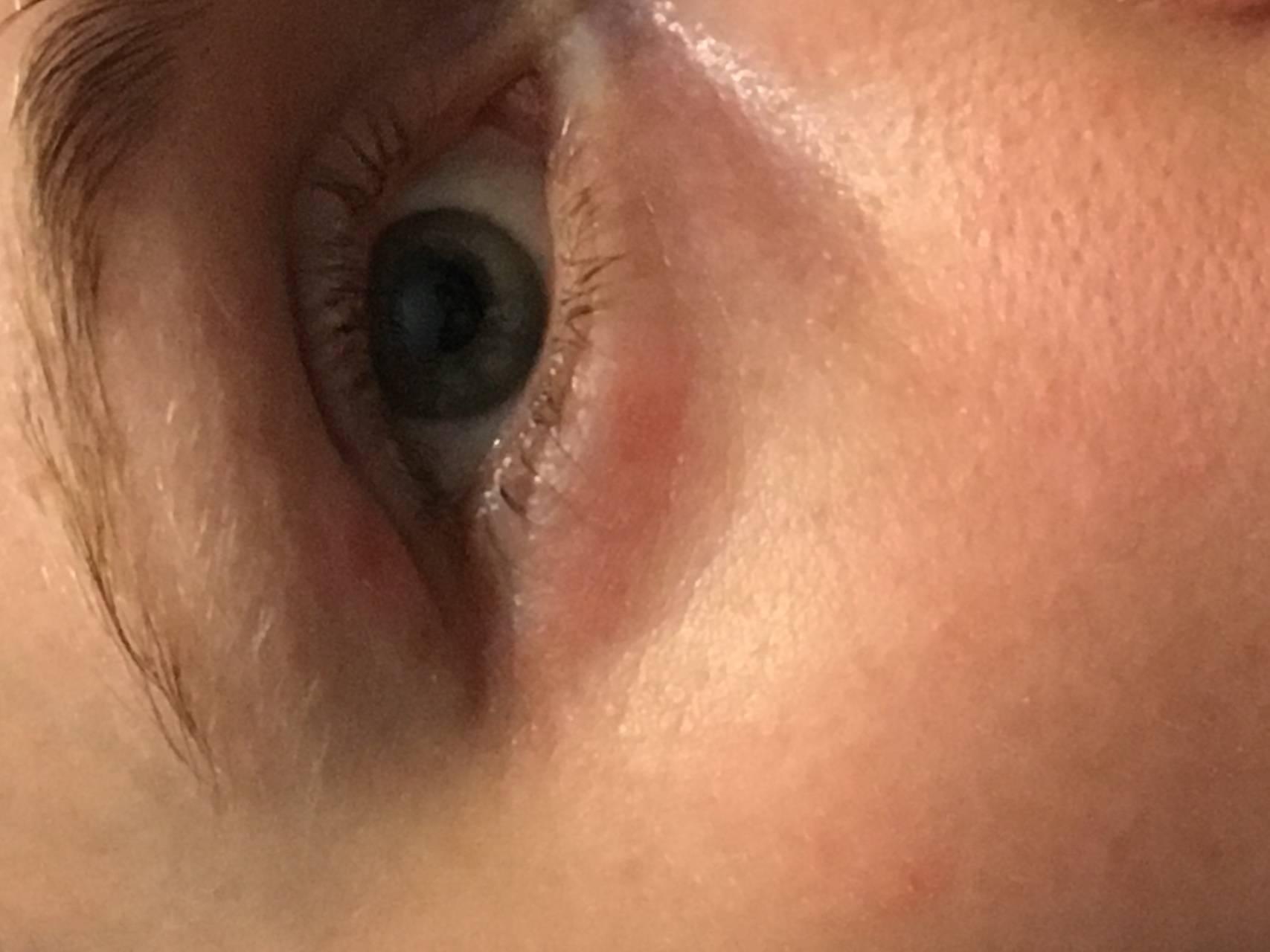 болят глаза при простуде что делать