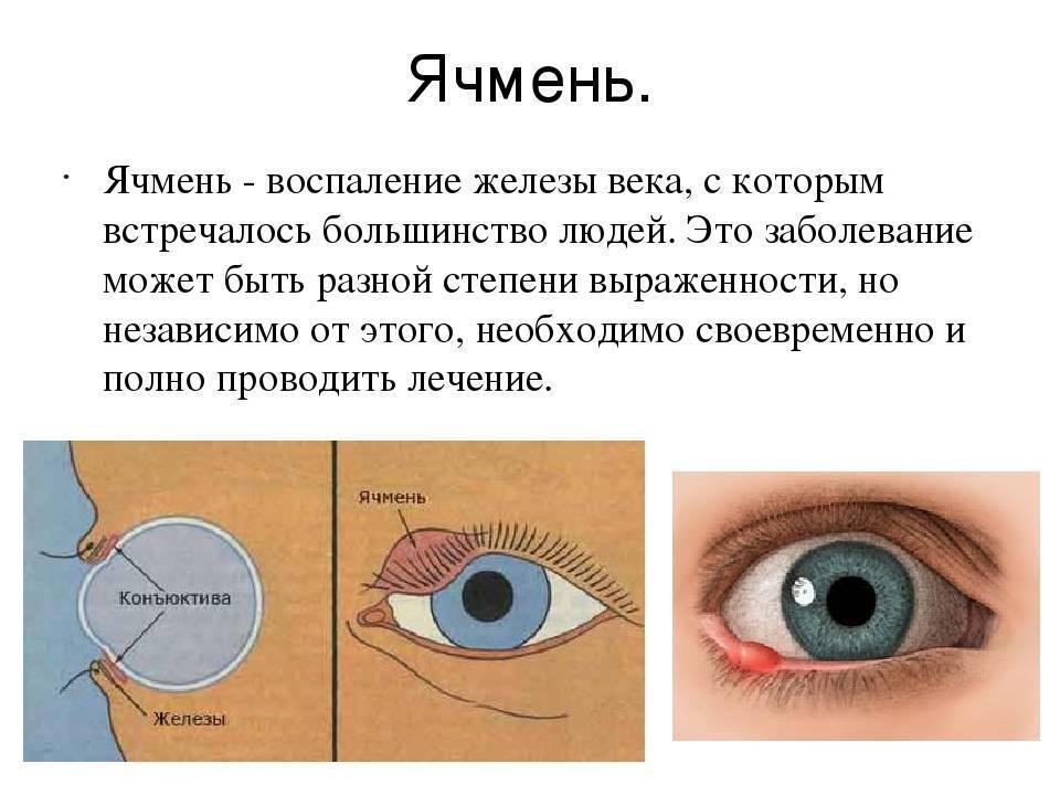 Ячмень на глазу: чем и как лечить
