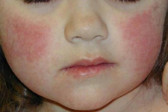 атопический дерматит щека