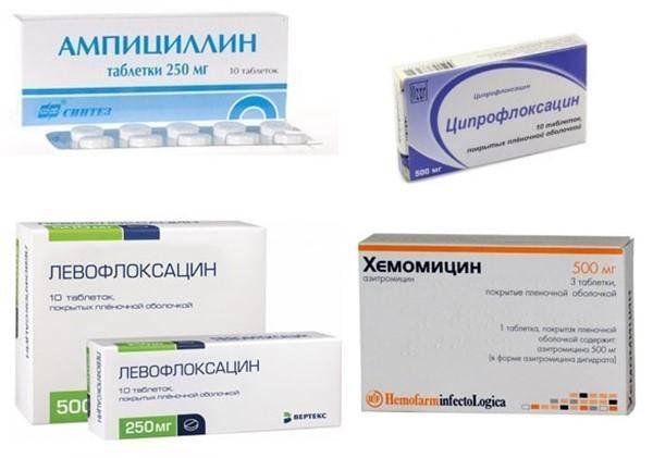 Симптомы хронического фарингита и схема лечения