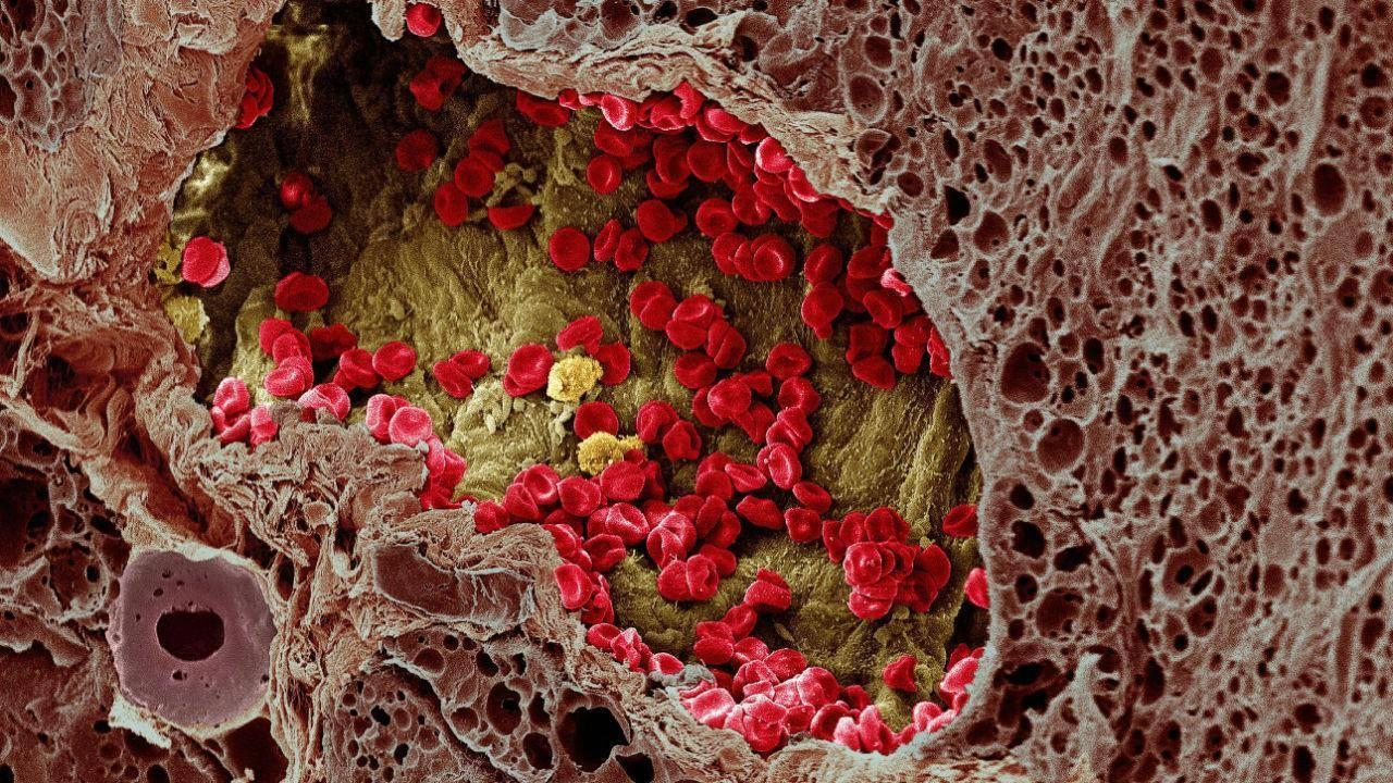 Подробнее о симптомах и лечении глистов у человека