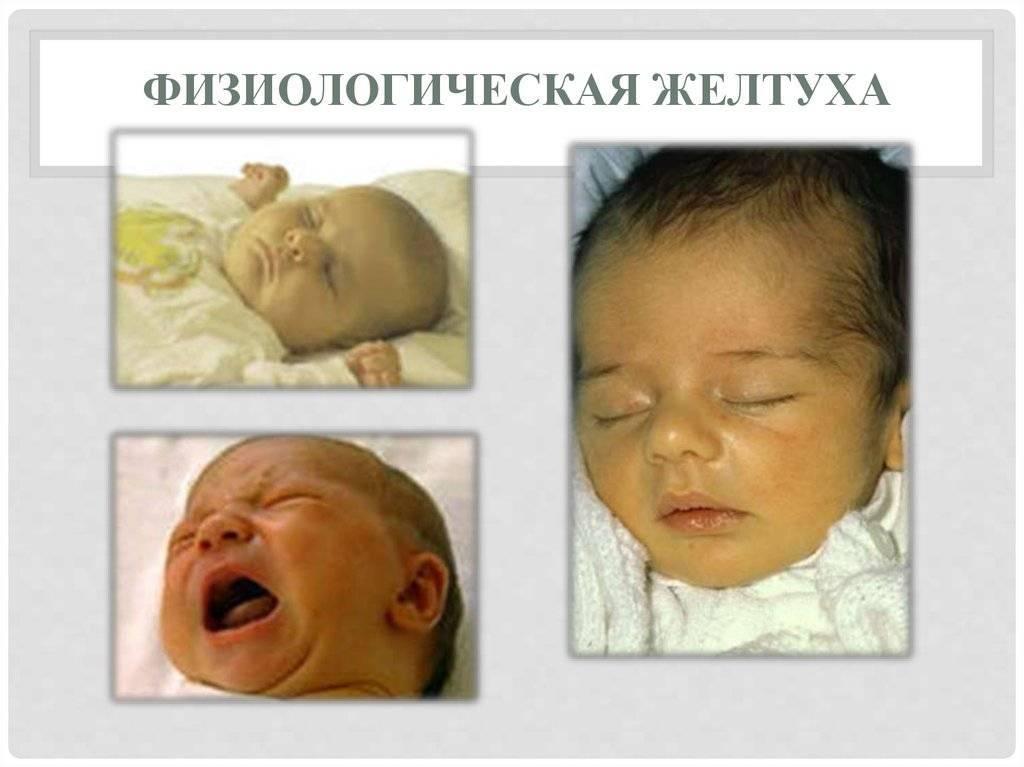 Желтухи новорожденных
