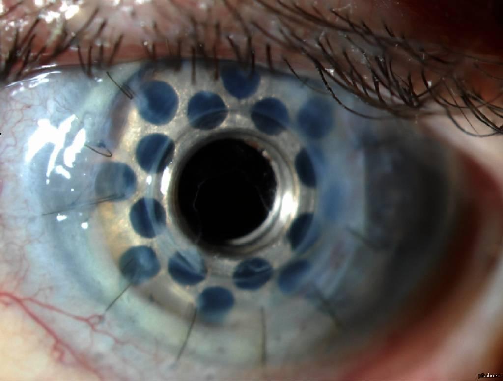 Ксероз роговицы глаза