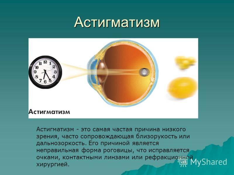 Астигматизм сложный гиперметропический, очки. - запись пользователя **iiфилиппокii** (ksushashir) в дневнике - babyblog.ru