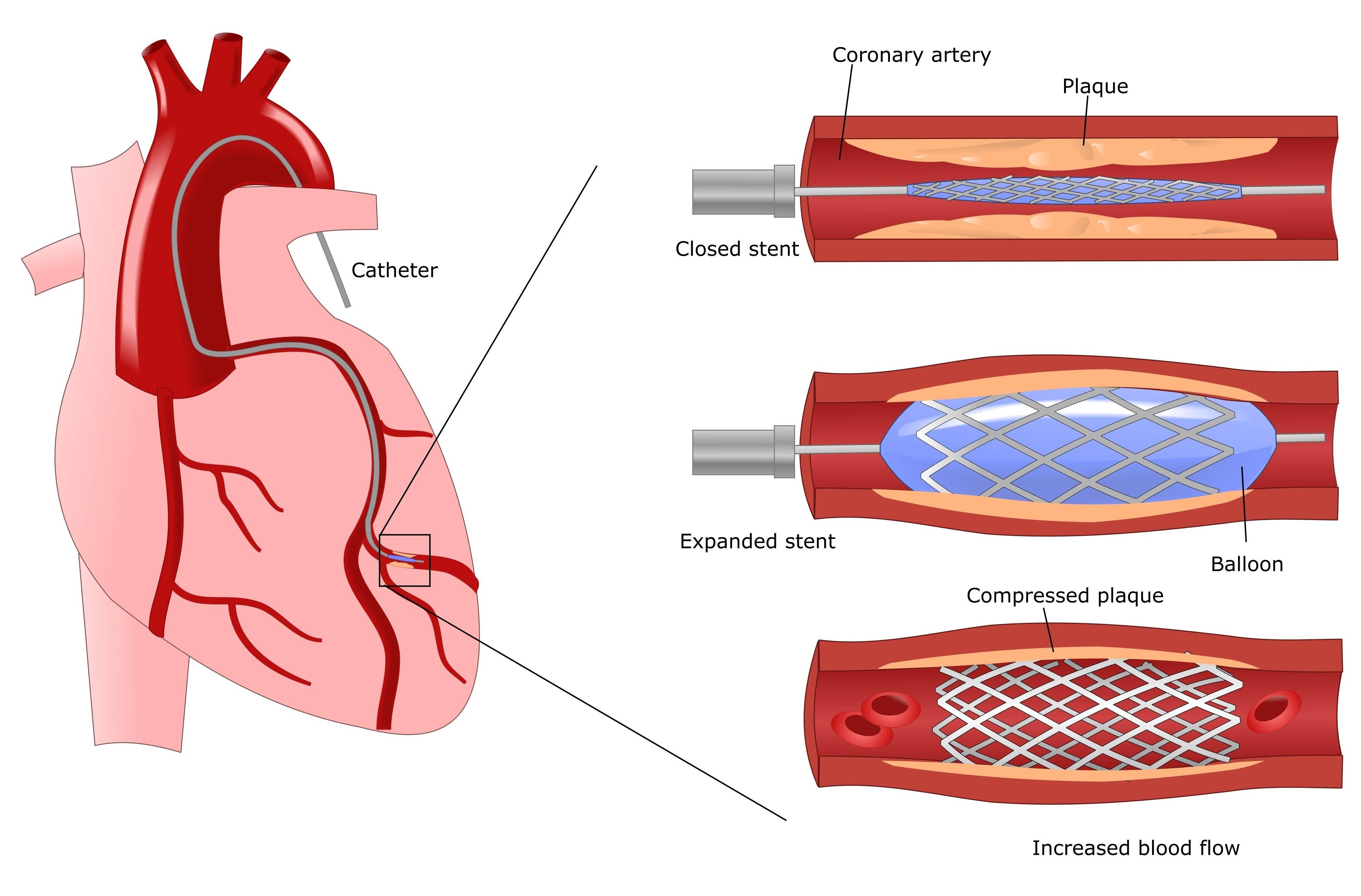 Как избавиться от холестериновых бляшек в сосудах шеи?