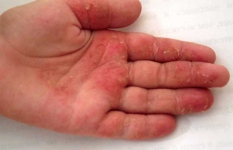 Дерматит на руках: лечение мазями и кремами у взрослых и детей, описание и фото атопического (аллергического) вида и контактного, и как и чем избавиться навсегда?