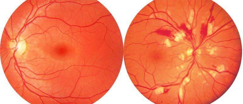 Как лечить ангиопатию (атеросклероз) сосудов сетчатки обоих глаз у взрослых и ее симптомы