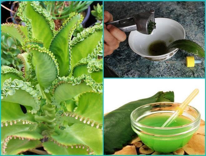 Каланхоэ от гайморита: инструкция по приготовлению и применению целебных средств из сока растения, противопоказания