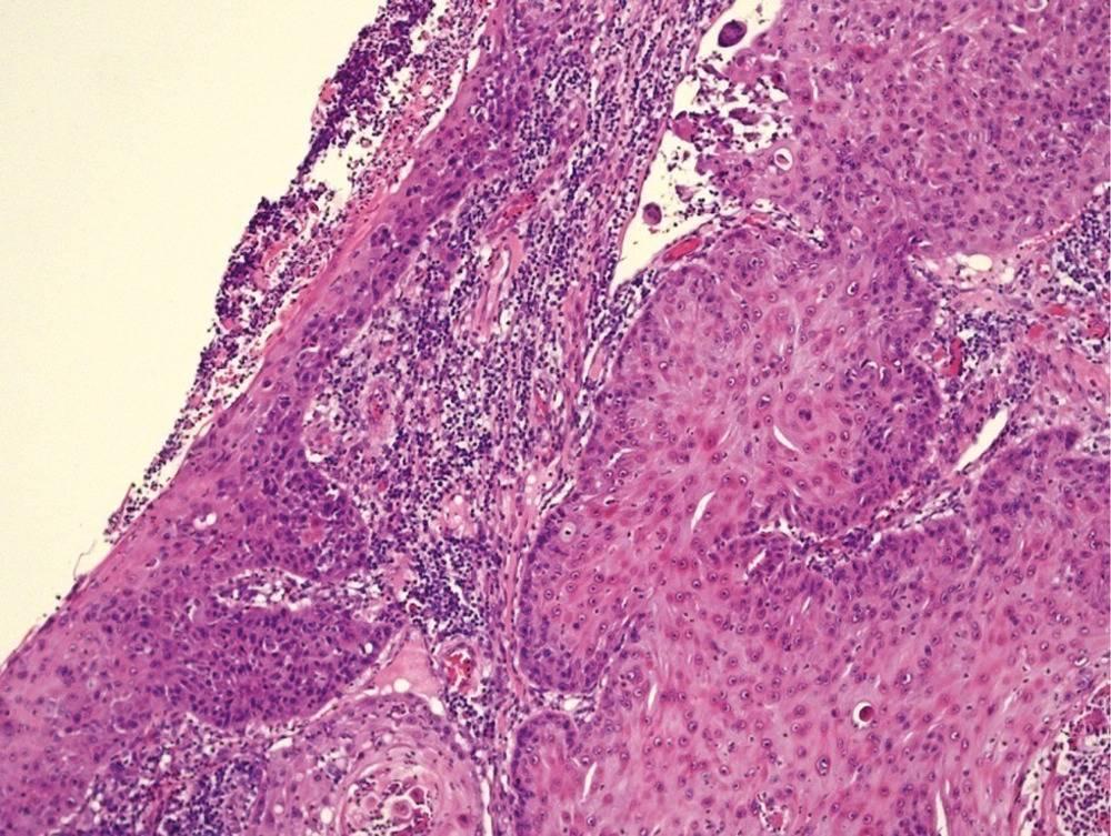 плоскоклеточный рак гортани прогноз