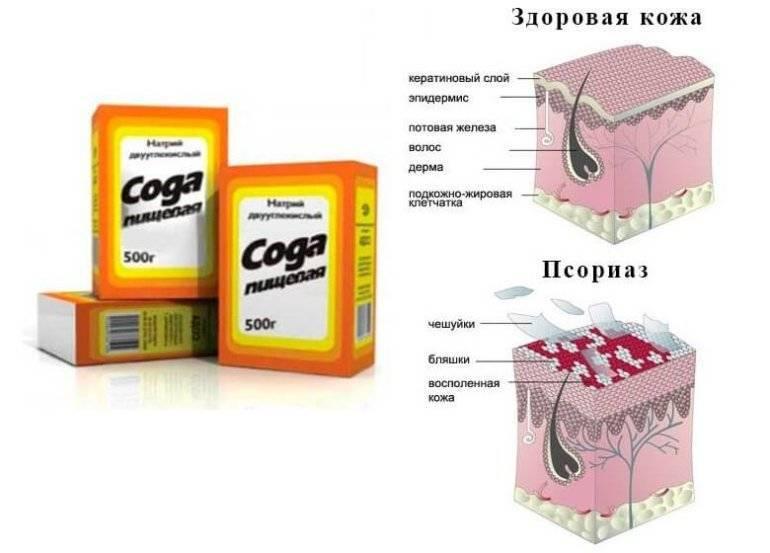 Лекарства и таблетки от псориаза - лучшие и эффективные средства