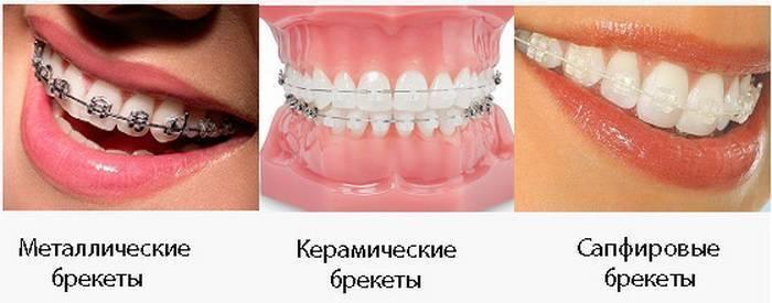 брекеты железные или керамические