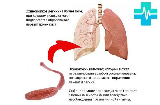 Что такое эхинококк легких