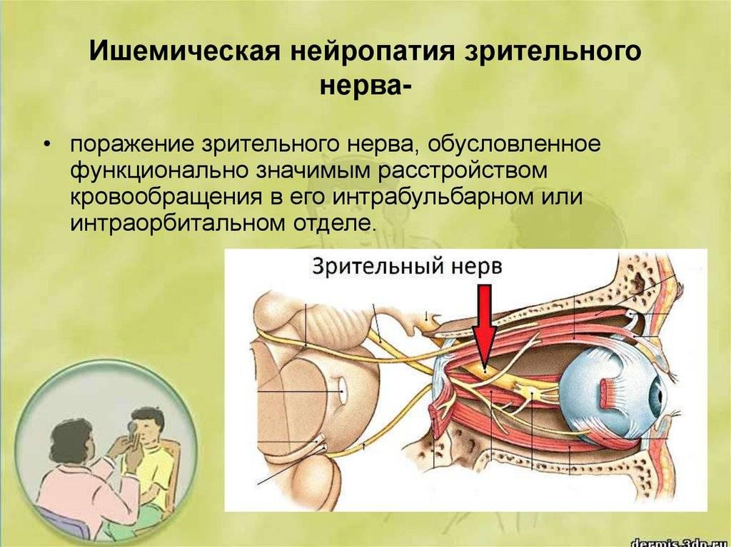 Ишемическая оптическая нейропатия задняя — википедия с видео // wiki 2