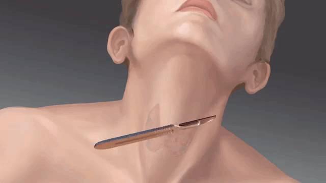 Восстановление после удаления щитовидной железы у мужчин: восстановление, железы, методы терапии, мужчин, признаки и лечение, профилактика, симптомы и лечение, удаления, щитовидной