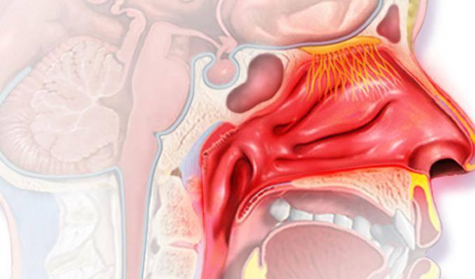 Эффективные методы лечения острого ринофарингита