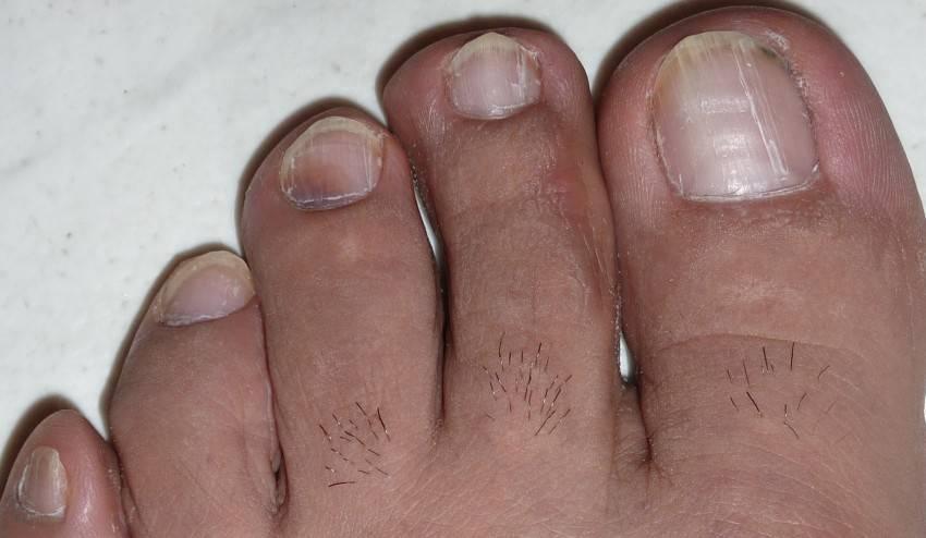 чем лечить псориаз ногтей на ногах
