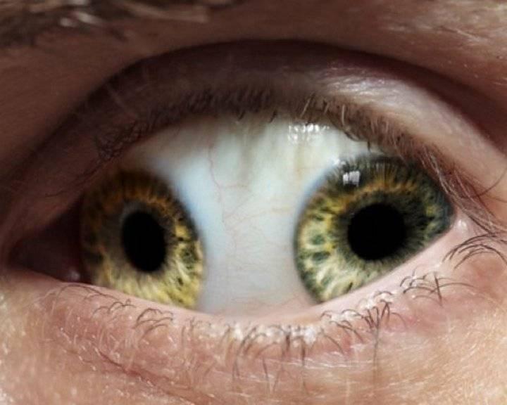 2 зрачка в одном глазу
