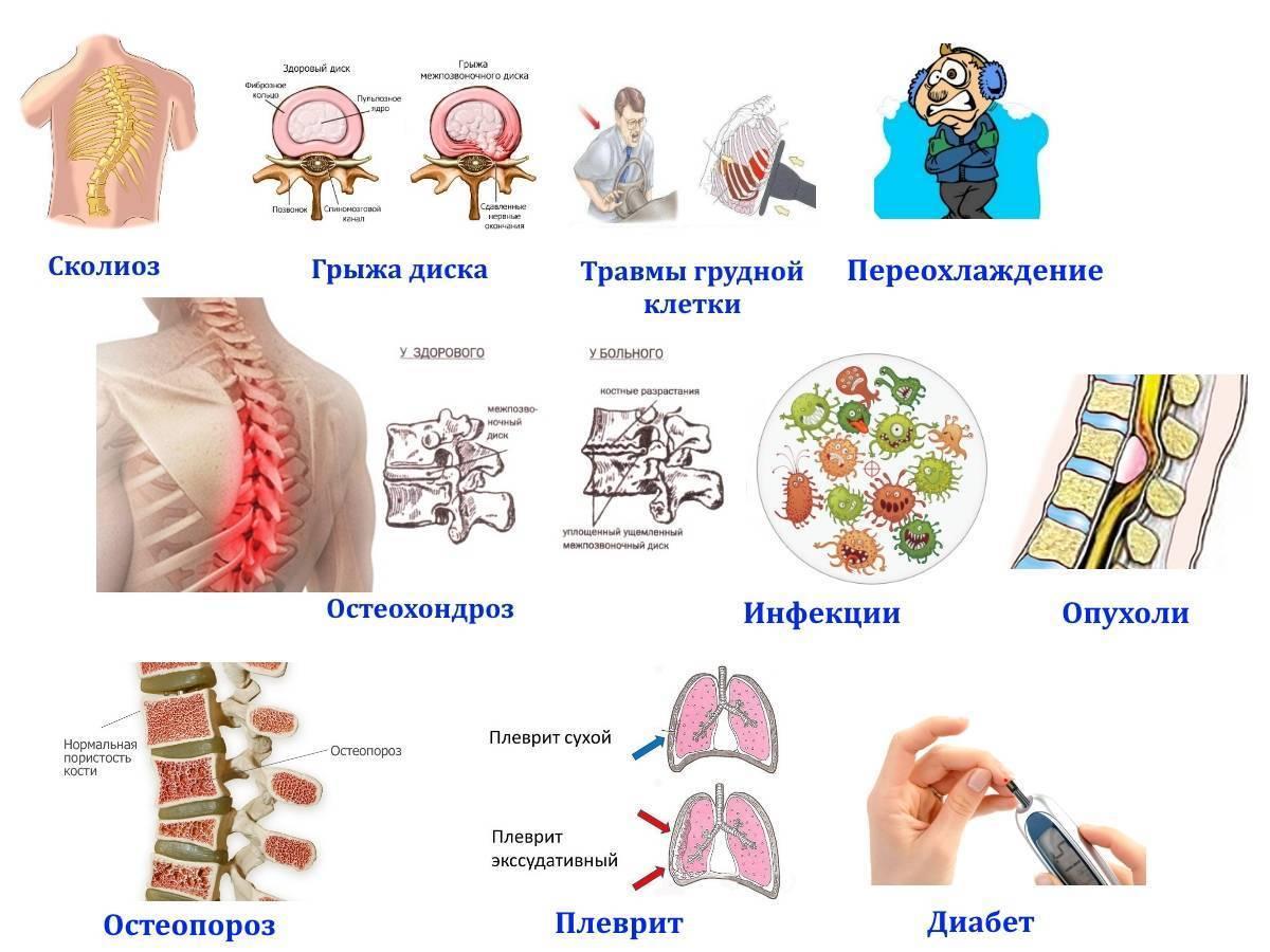 Межреберная невралгия: симптомы и лечение народными средствами в домашних условиях