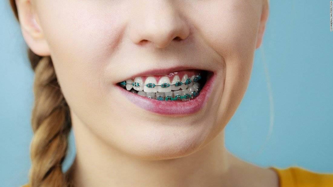Как можно целоваться с брекетами на зубах – откровенно о сокровенном