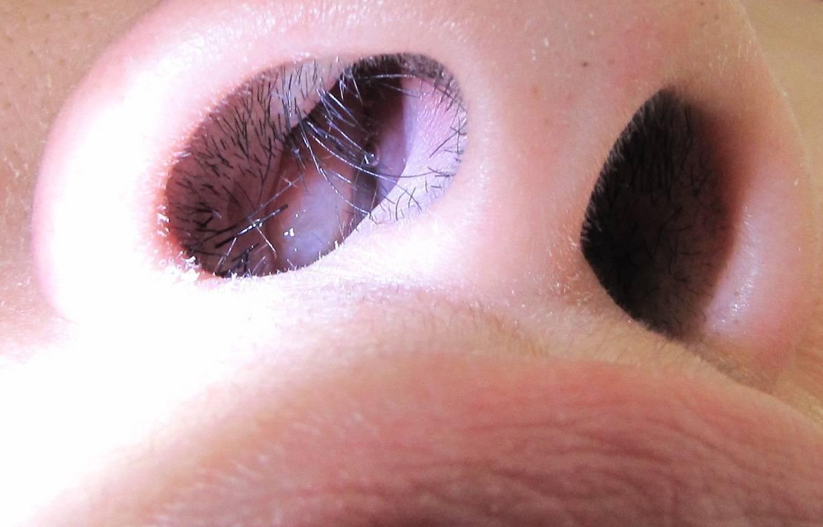 Почему в носу сохнет и образуются корочки
