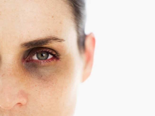 как быстро избавиться от гематомы под глазом