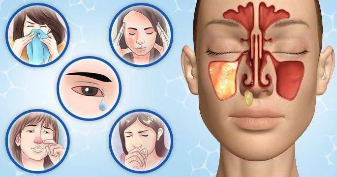Есть ли различия между заболеваниями синусит и гайморит