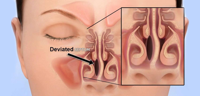 сухость и корки в носу лечение