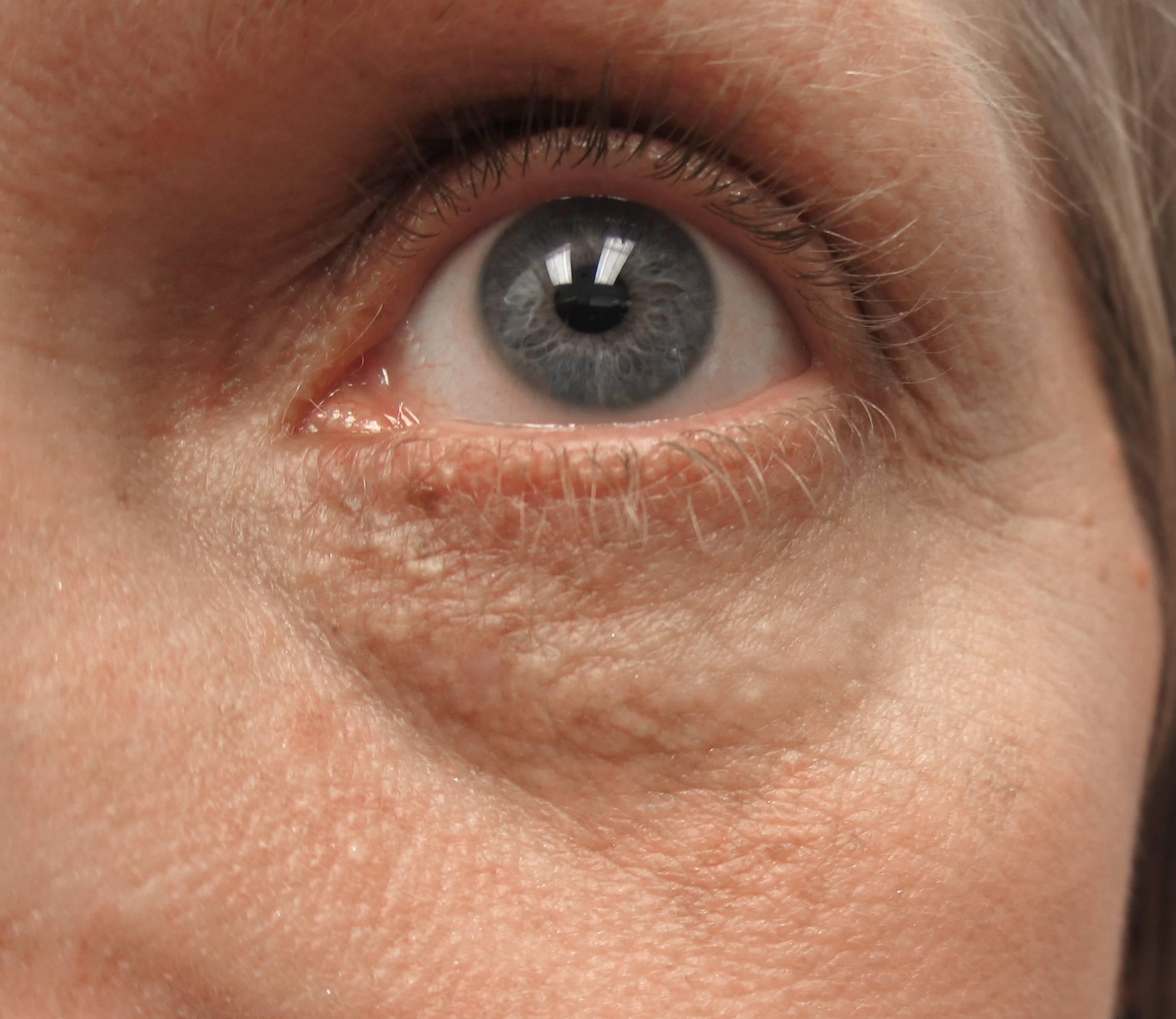 Как удалить холестериновые бляшки под глазами