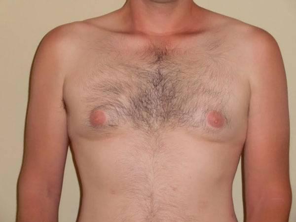 Гинекомастия у мужчин: лечение в домашних условиях, можно ли убрать упражнениями