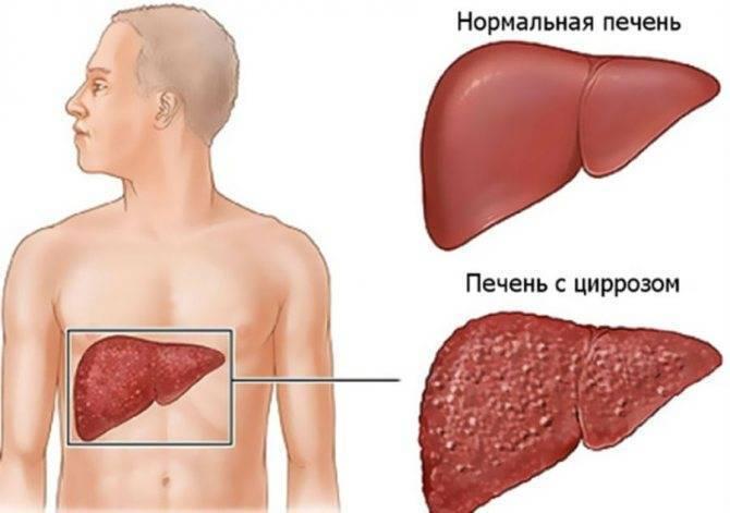 Цирроз печени токсического генеза