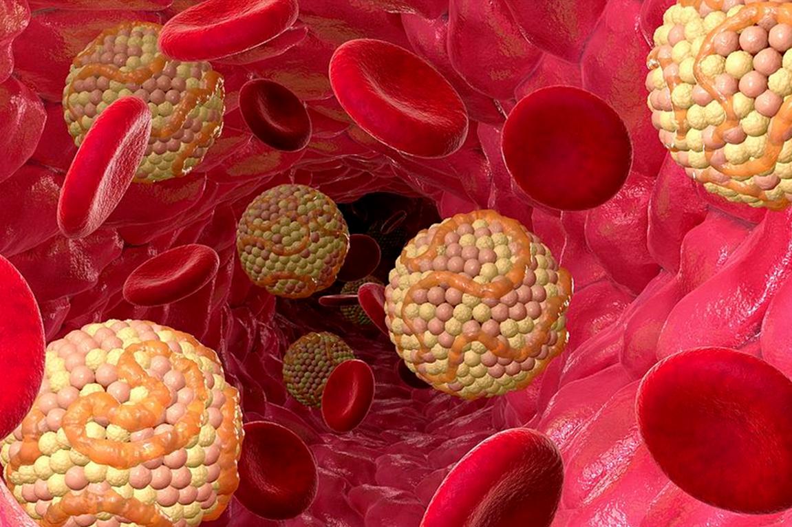 Как контролировать холестерин в крови - про холестерин