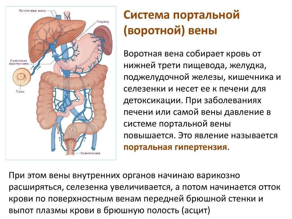 лимфаденопатия ворот печени