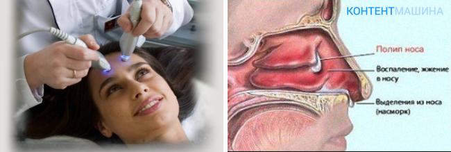 Этиология, патогенез и методика лечения двухстороннего гайморита