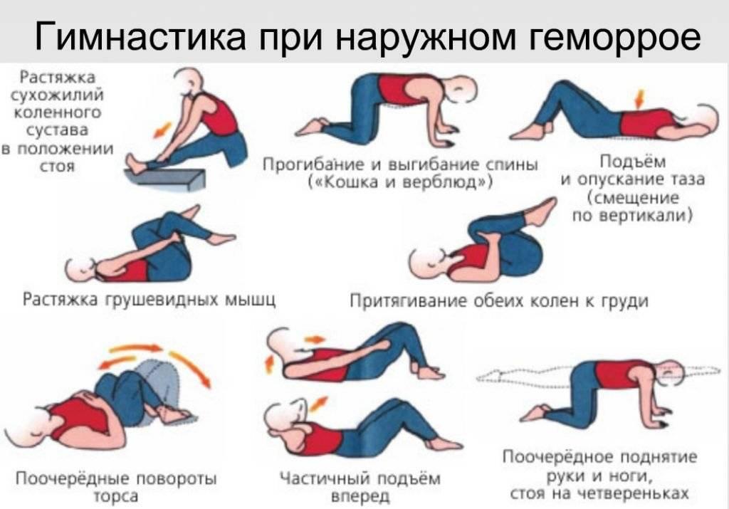 упражнения при геморроидальных узлах