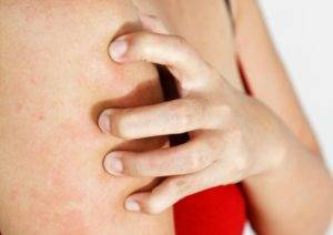 Зуд кожи тела при заболеваниях печени - виды высыпаний, лечение и диета