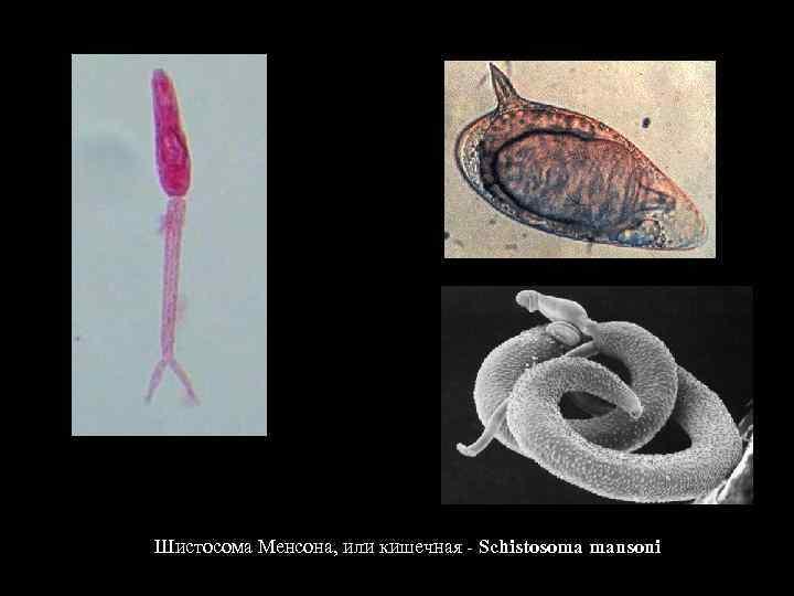 Шистосома у человека (schistosoma haematobium): симптомы, профилактика и лечение